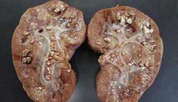 Sỏi san hô có điều trị được không?